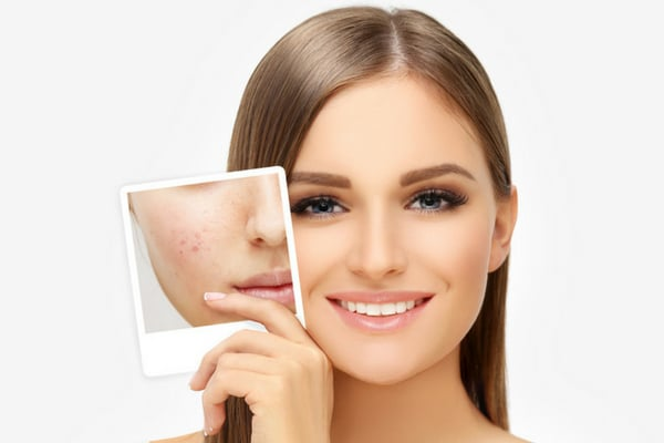 Natural Acne Treatment in Oakville