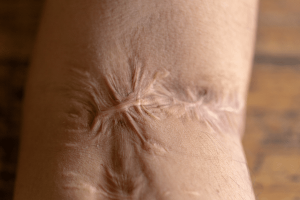 Scar Tissue Therapy Oakville