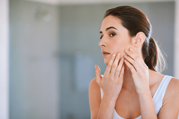 Adult acne and pimples